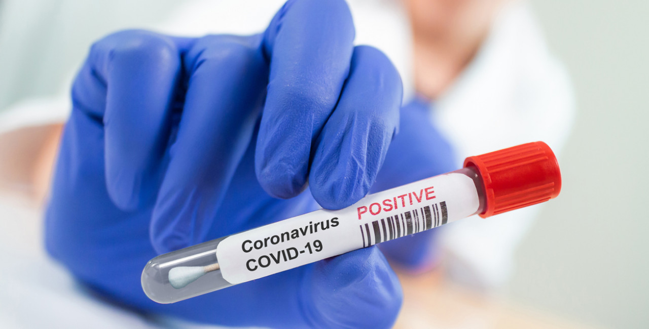 Czech labs will now directly contact those who test positive for COVID-19  via e-mail, SMS - Prague, Czech Republic